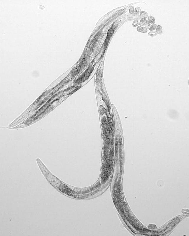 C. elegans under a microscope