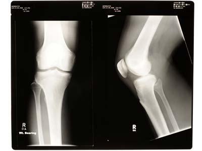 Bone or cartilage?
