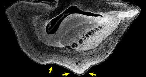 Cientistas usaram genes humanos para aumentar o cérebro dos macacos