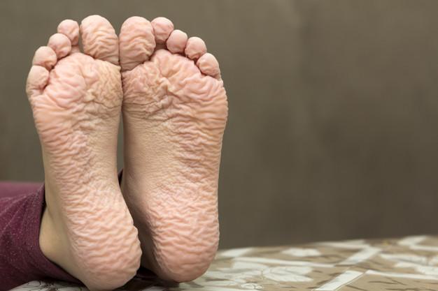 Por que nossos dedos e dedos do pé enrugam durante o banho?